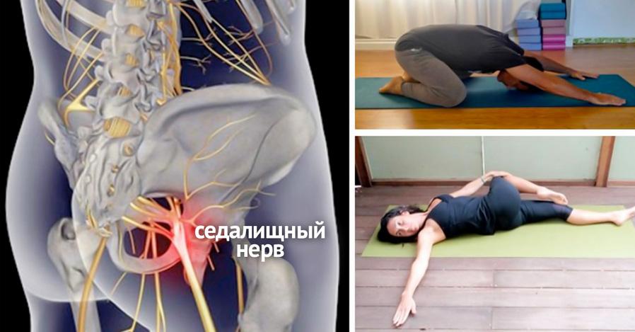 Защемление нерва в пояснице боль отдает в ногу беременна 200