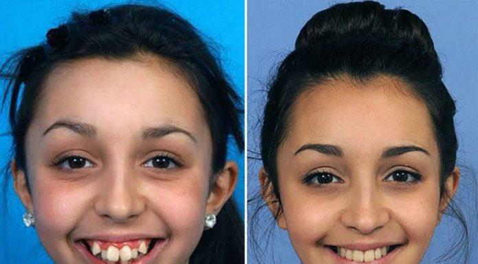 Фото девушки после челюстной операции – это изменило ее жизнь навсегда!