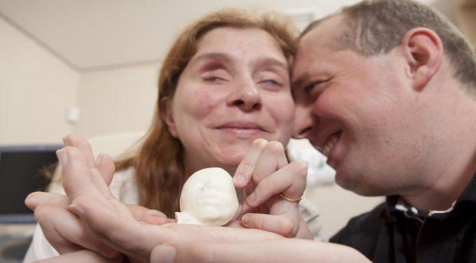 Слепая пара получила распечатанный в 3D снимок УЗИ, чтобы «увидеть» своего малыша