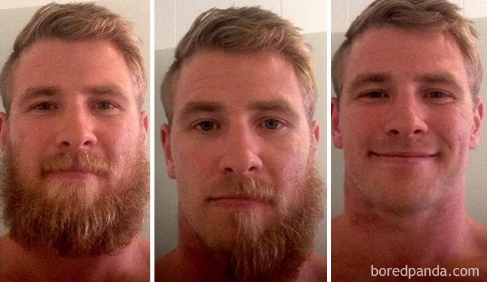 Усы после похудения