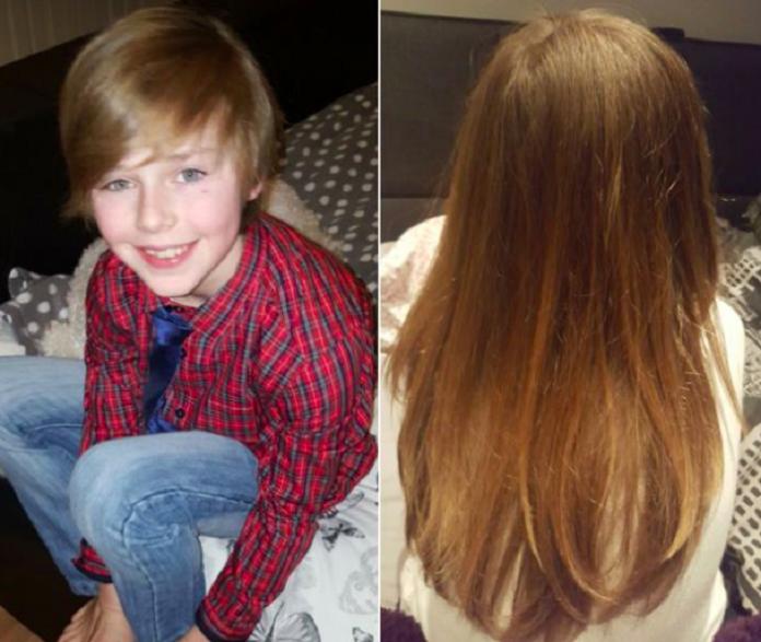 Почему нет волос у больных раком