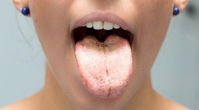 Что цвет языка может рассказать о вашем здоровье?