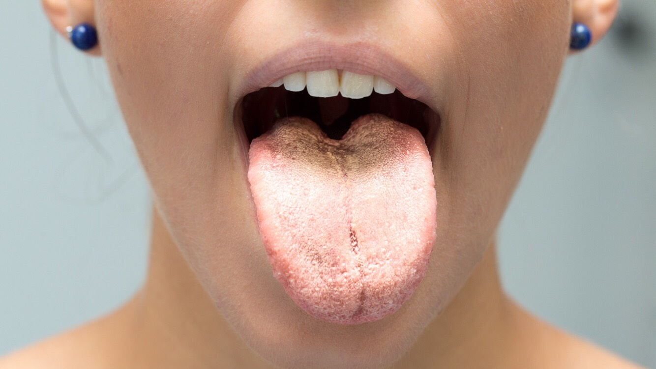pictures of mouth and tongue disease entusacom - 1334×751